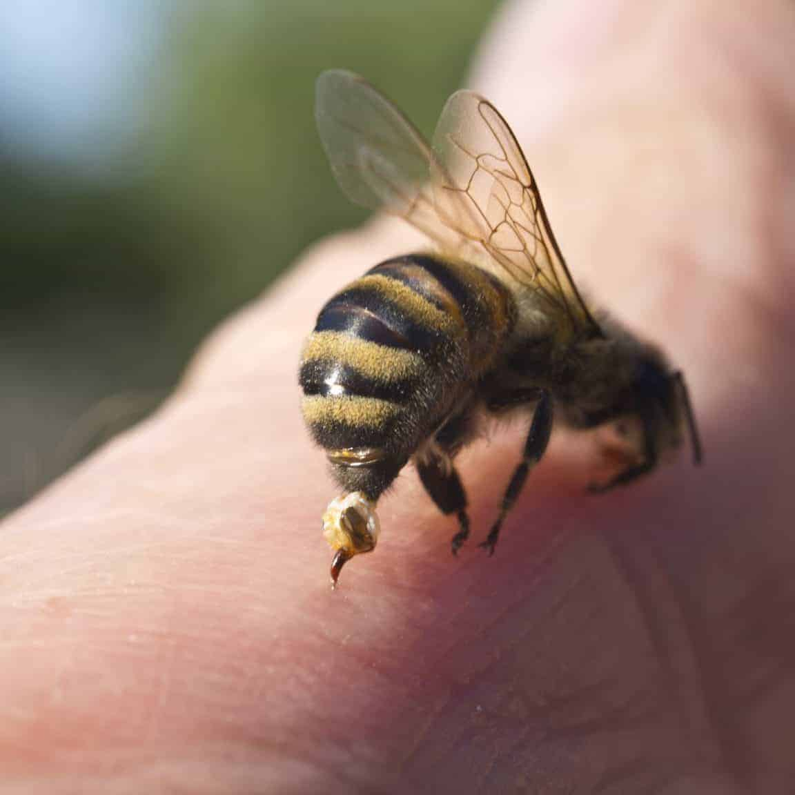 The Buzz about Bee Stings